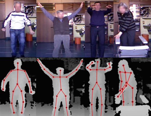 Gait and upper-body movement analysis using vision-based sensor in Parkinson's disease
